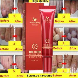 Nail Repair Treatment | Skin Care for sale in Dar es Salaam, Ilala