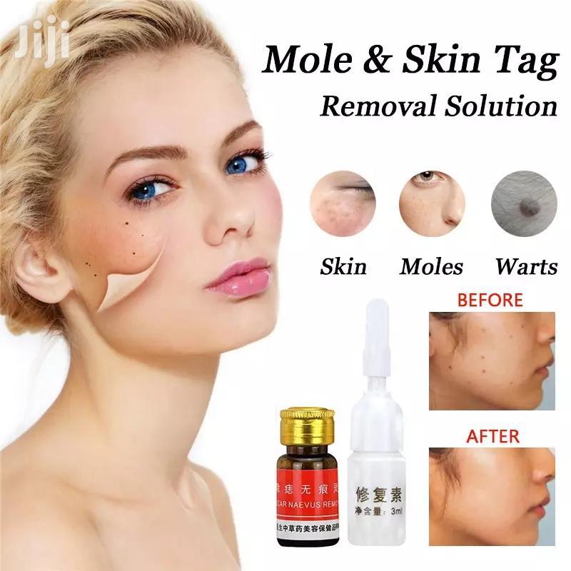 Archive: Skin Mole Removal