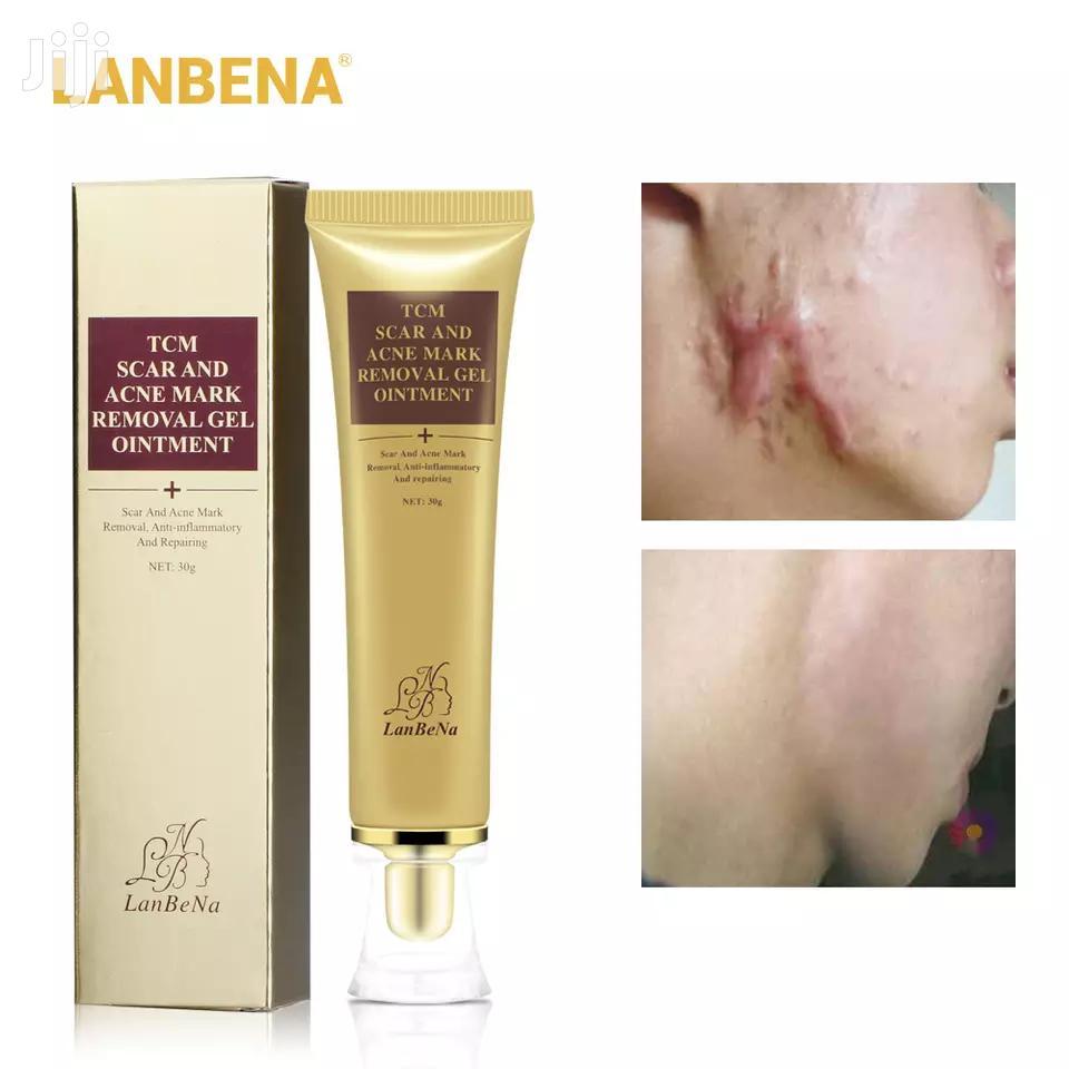 Acne Scar Mark Removal Cream   Skin Care for sale in Ilala, Dar es Salaam, Tanzania